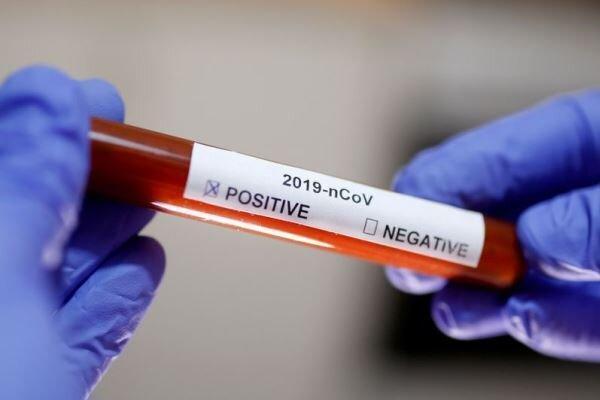 اجازه استفاده از فناوری های جدید تشخیص ویروس کرونا در آمریکا
